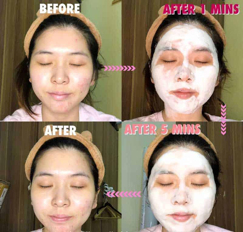 Sau khi thoa đều lên da, sản phẩm bắt đầu sủi bọt, tiến hành massage để tăng hiệu quả, sau đó rửa sạch mặt.